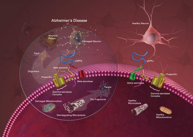 medical marijuana oil alzheimer's disease